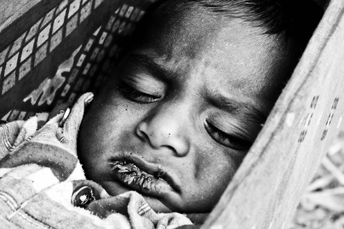 A poor born kid is trying to sleep in his home made swing, while his parents are working in the fields, but he can't ignore his fly filled lips. The spots of fly shit are obvious on his face.